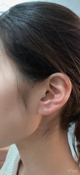 耳つぼ(花粉症)